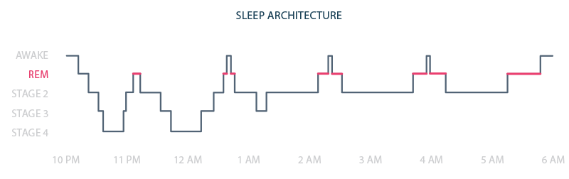 A diagram showing the different stages of sleep